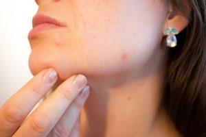 Consejos y verdades sobre el acné y cómo tratarlo