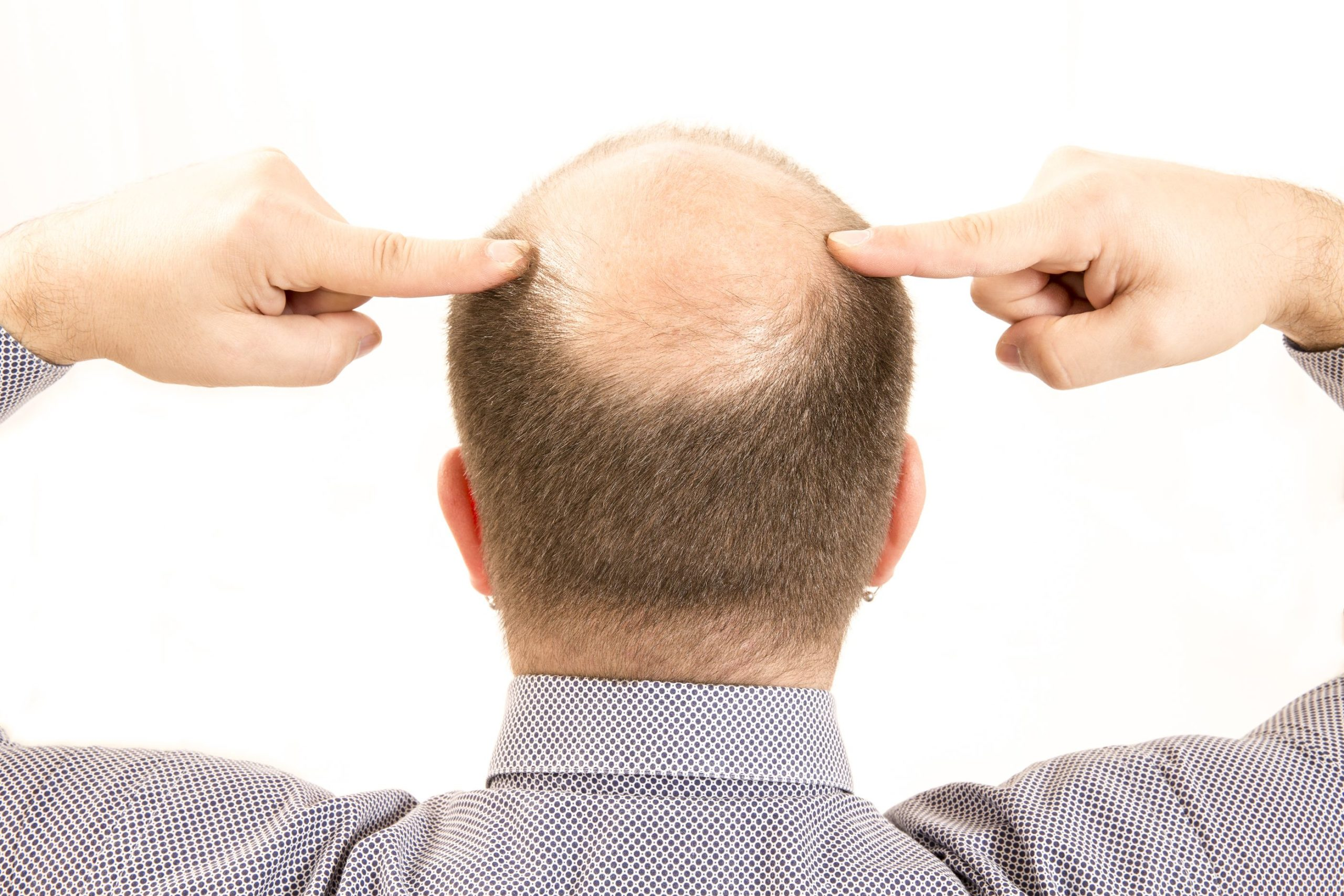 causas de la perdida excesiva de cabello
